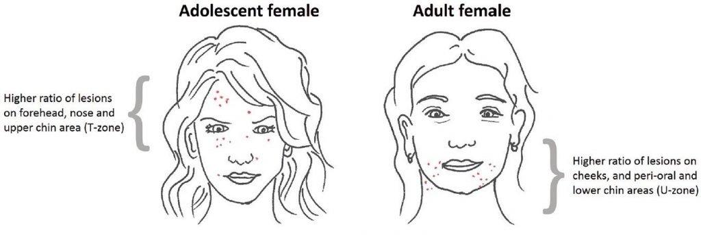 Period acne location